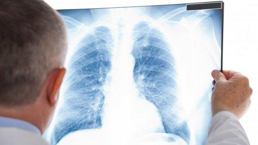 Хворі на туберкульоз, які не приймають протитуберкульозні ліки, схильні захворіти на СOVID-19