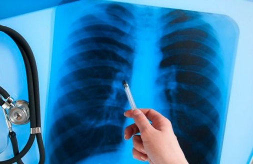 На Кіровоградщині хворій на туберкульоз фельдшер «видає» ліки у віконце