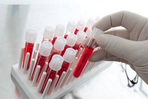 Вісім медзакладів отримали кілька тисяч тестів для діагностики ВІЛ та гепатиту С від благодійної організації